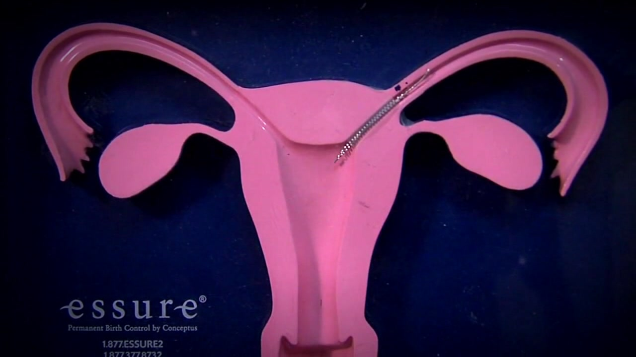 This undated image shows the Essure contraceptive.