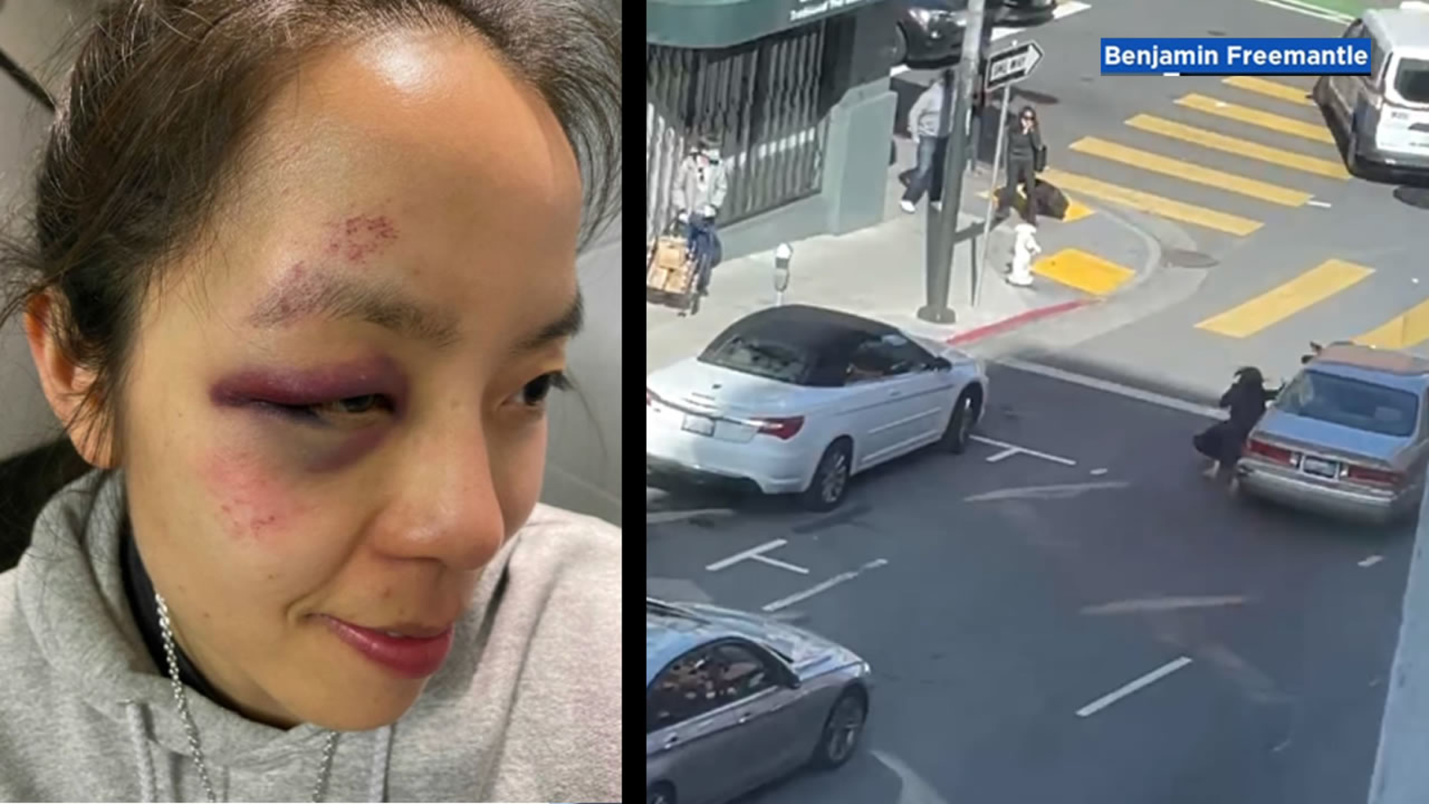 abc7.com: 'You are loved': Woman responds with sympathy for attackers after violent robbery in San Francisco