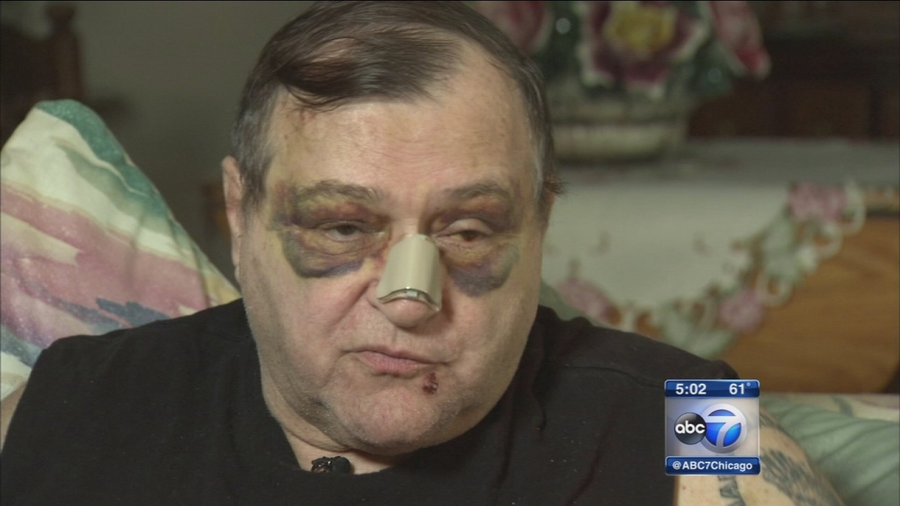 Veteran beaten after argument with driver