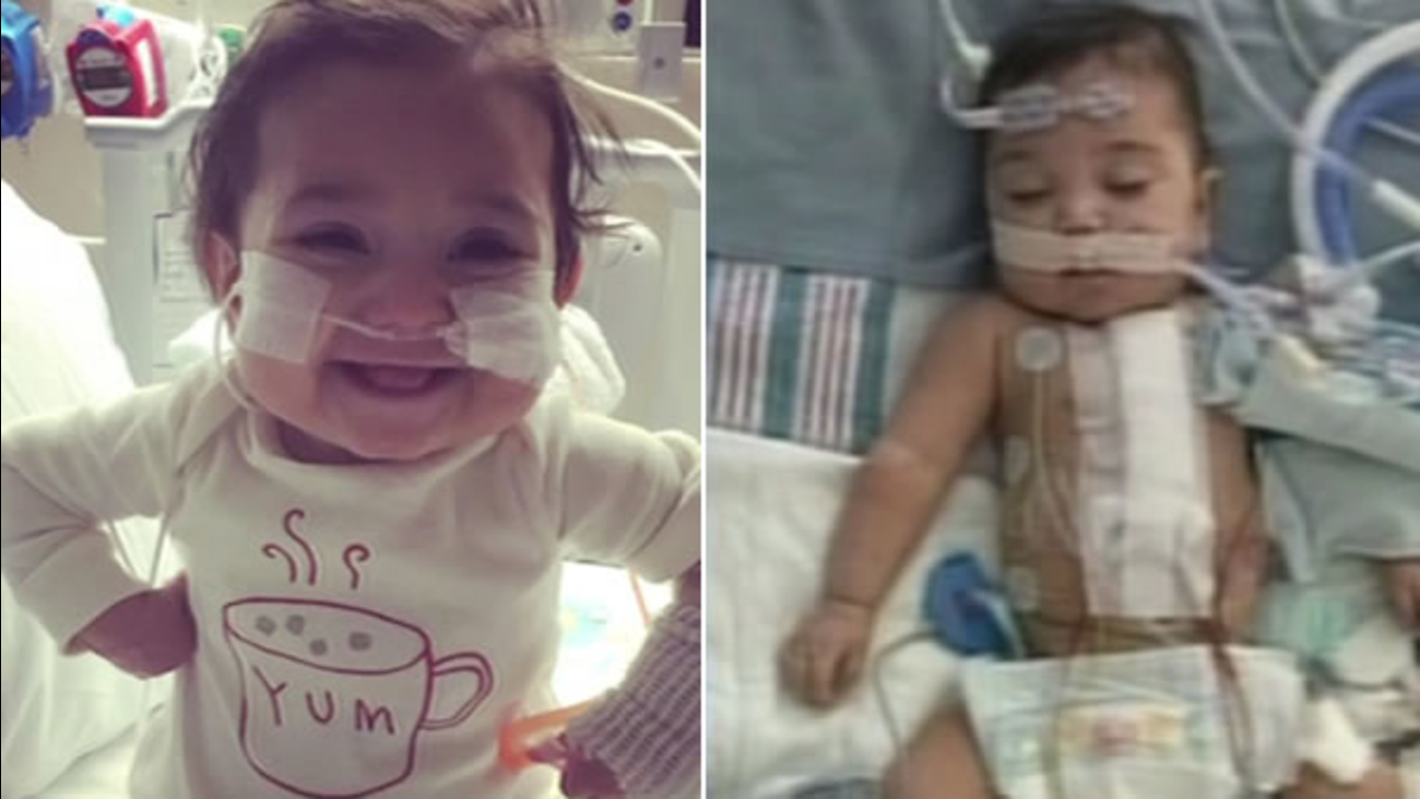 Paloma Bartocci, 1, was born with a congenital heart defect.