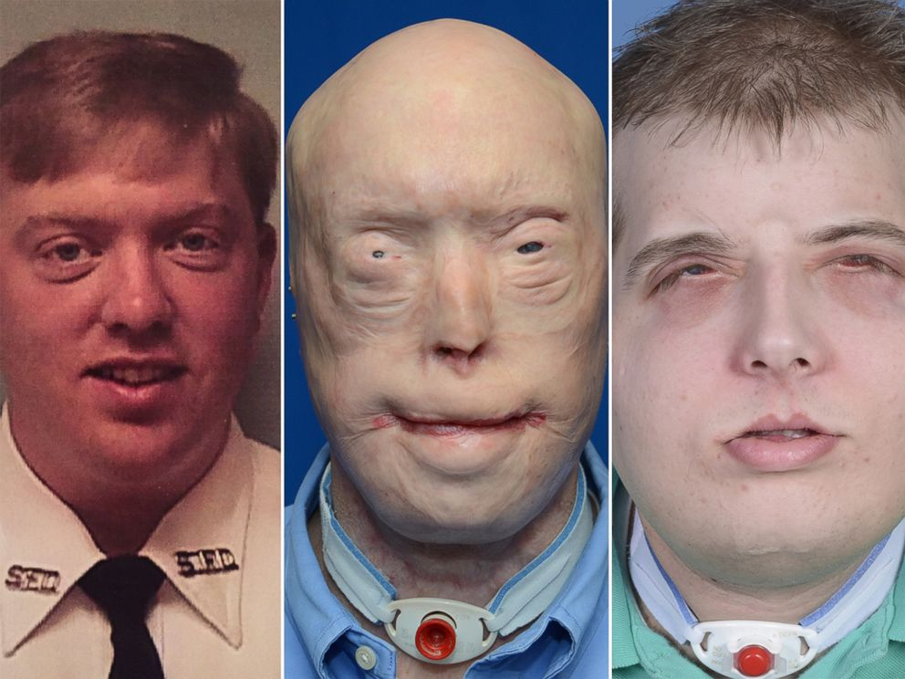 Pat Hardison is shown here before the 2001 fire (left), then before his face transplant surgery (center) and what he looks like today after surgery (right).