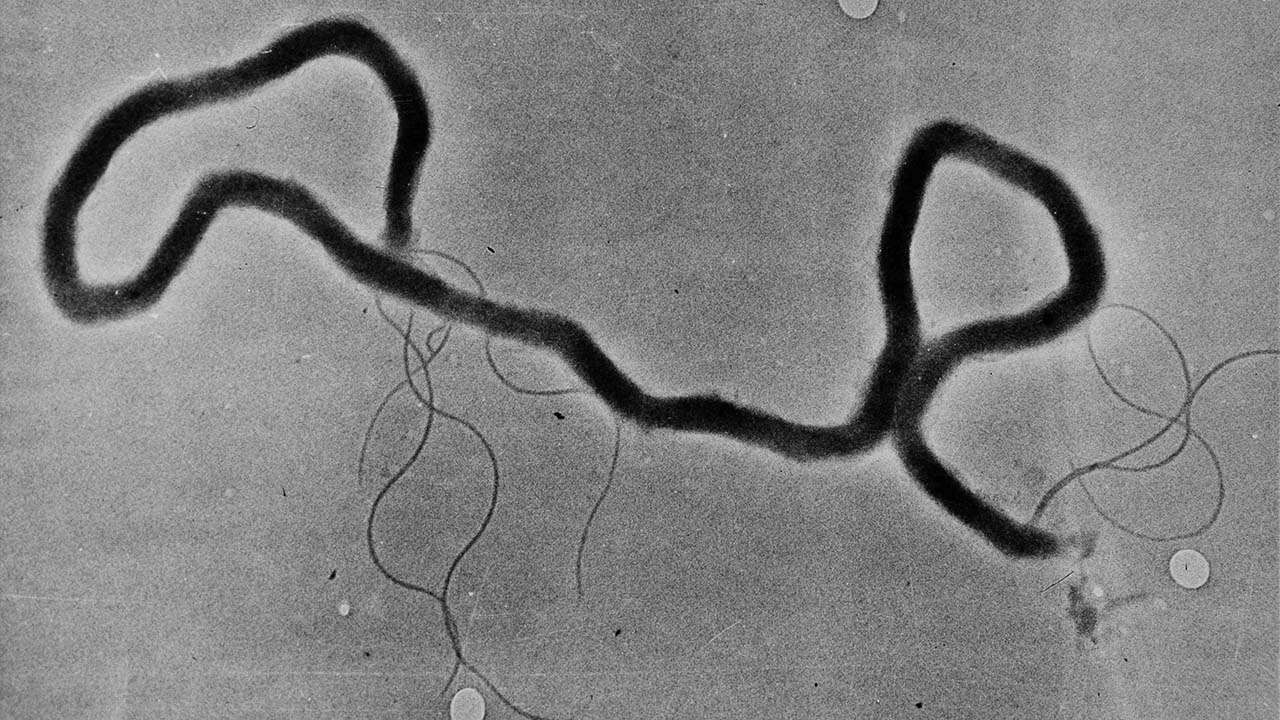 The organism treponema palladium, which causes syphilis