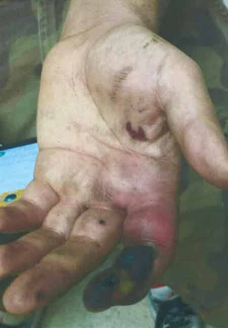 The hand of Vicente Garza on Oct. 16, 2015, with a severe injury to his left index finger after smoking an e-cigarette.