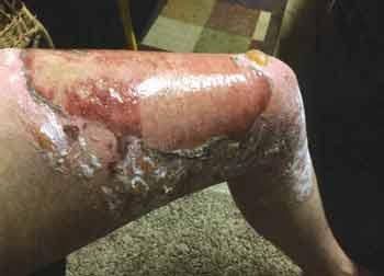 The left leg of Greg Phillips on Sept. 11, 2015, with second degree burns.