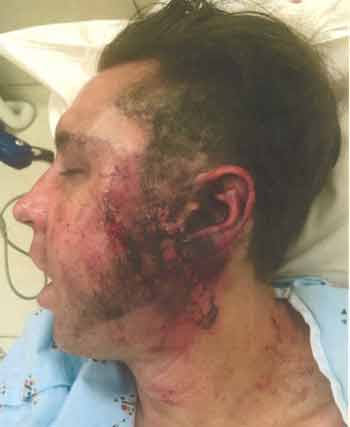 Danny Califf on Feb. 23, 2015, with second degree burns on his face, ear and neck.