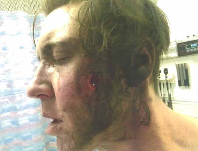 Danny Califf on Feb. 23, 2015, with a fractured cheekbone and hole in his cheek.