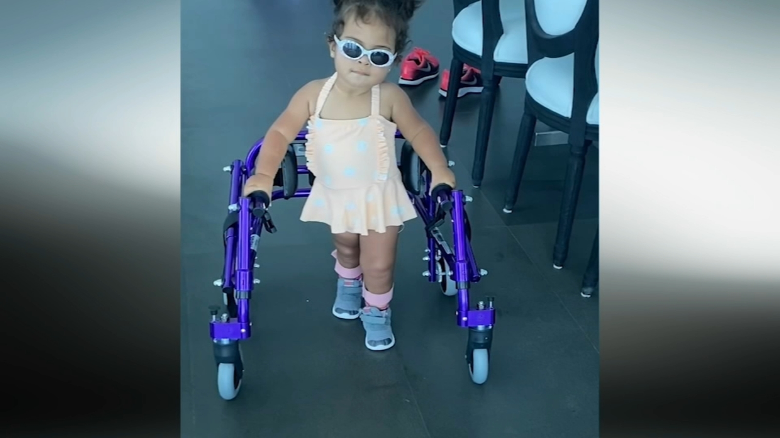 Philadelphia toddler with rare genetic disease proves to be walking miracle