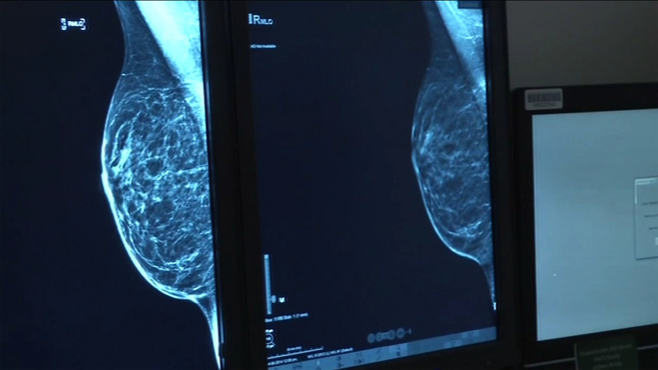 An X-ray during a mammogram is seen in this undated image.