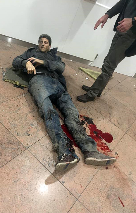 <div class='meta'><div class='origin-logo' data-origin='AP'></div><span class='caption-text' data-credit='Ketevan Kardava/Georgian Public Broadcaster via AP'>A man is wounded in Brussels Airport in Brussels, Belgium, after explosions were heard Tuesday, March 22, 2016.</span></div>
