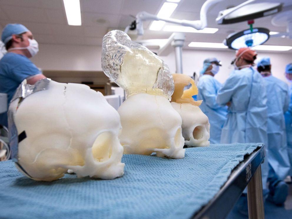 """<div class=""""meta image-caption""""><div class=""""origin-logo origin-image abcnews""""><span>ABCNews</span></div><span class=""""caption-text"""">(Katherine C. Cohen/Boston Children's Hospital)</span></div>"""