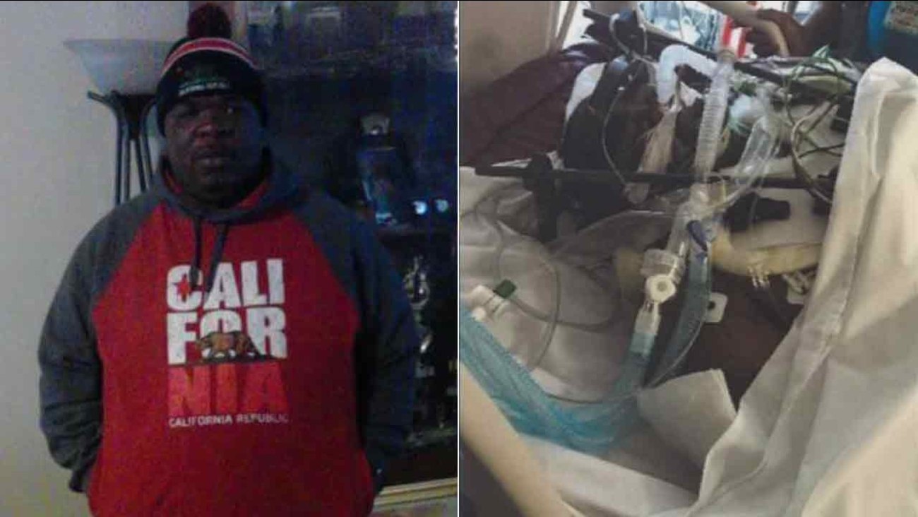 Marvin Jones, 42, is shown in photos before and after a car crash in Compton on May 30, 2016.