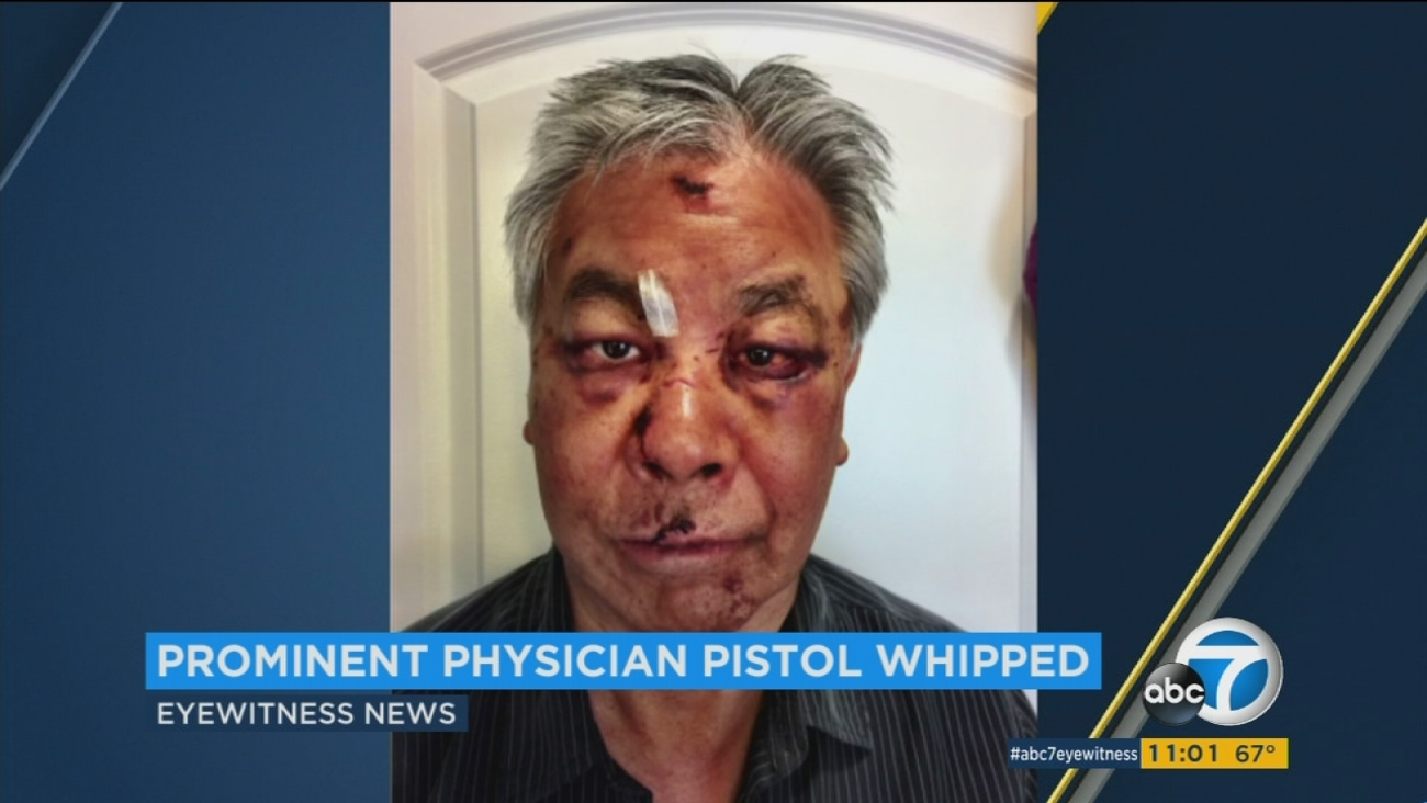 Dr. Bruce Lee, a prominent Beverly Hills physician, was savagely pistol-whipped in Venice on July 23 in what he describes as an attempted robbery.