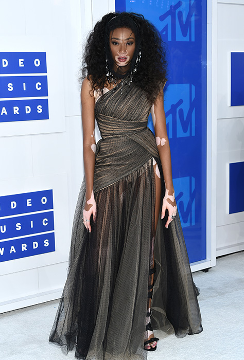 "<div class=""meta image-caption""><div class=""origin-logo origin-image ap""><span>AP</span></div><span class=""caption-text"">Winnie Harlow arrives at the MTV Video Music Awards at Madison Square Garden on Sunday, Aug. 28, 2016, in New York. (Evan Agostini/Invision/AP)</span></div>"