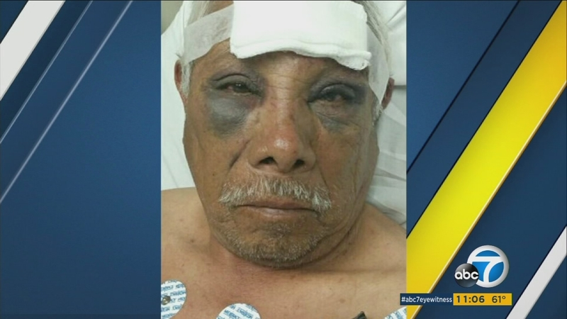 71-year-old ice cream man brutally beaten, robbed in North Hollywood