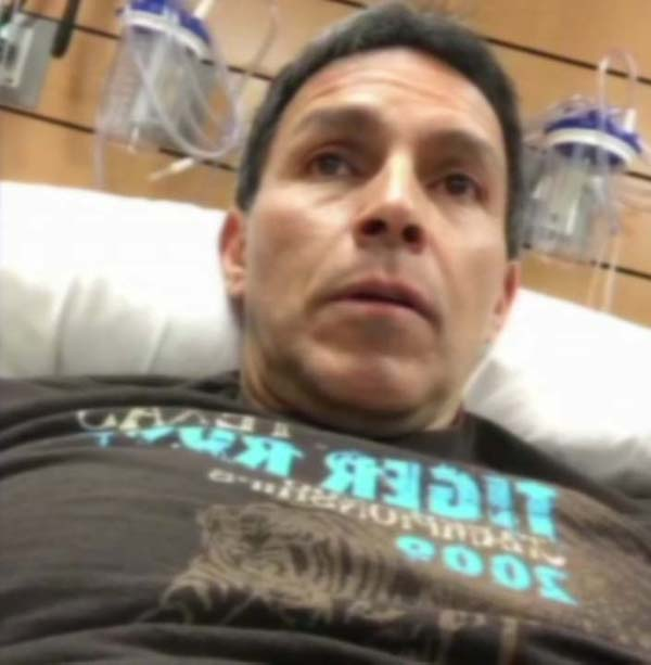 Art Rascon Hospitalized After Copperhead Snake Bite Abc13 Com