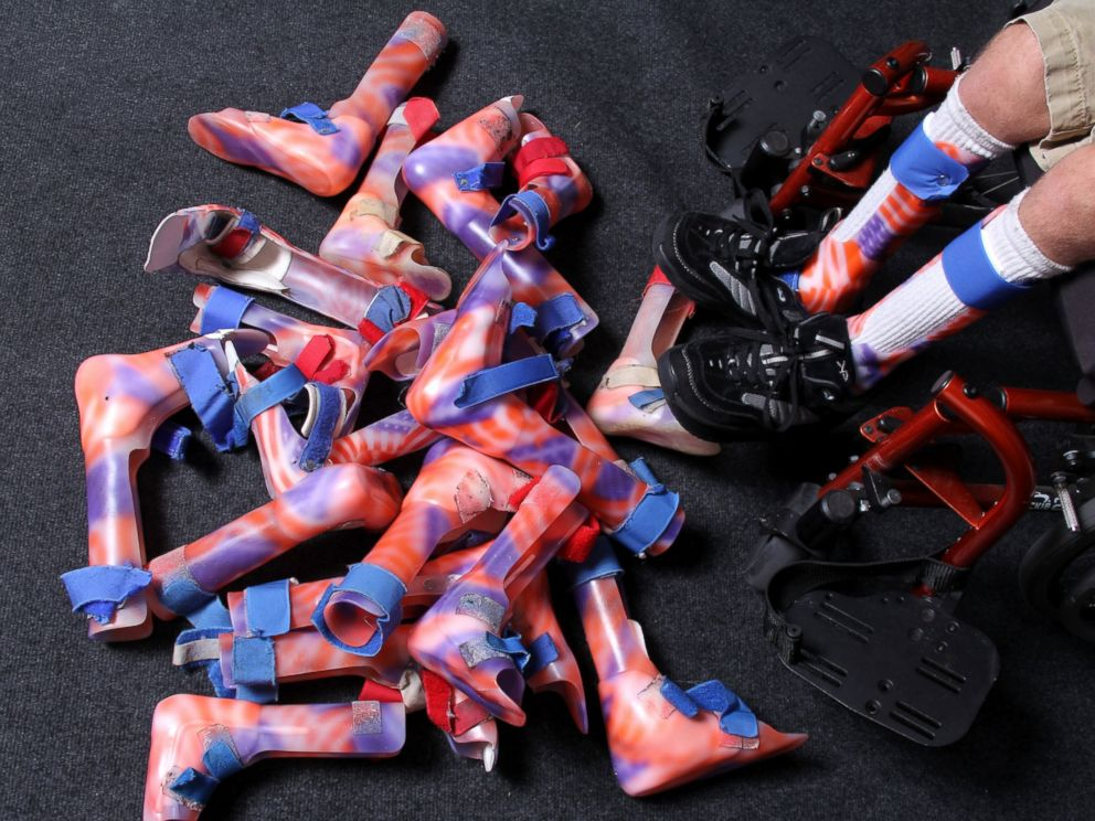 "<div class=""meta image-caption""><div class=""origin-logo origin-image none""><span>none</span></div><span class=""caption-text"">Arek has 10 pairs of leg braces, all decorated with the American flag. (Myron Leggett/ABC News)</span></div>"