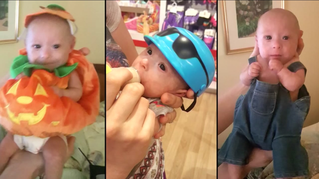 Baby diagnosed with rare form of dwarfism