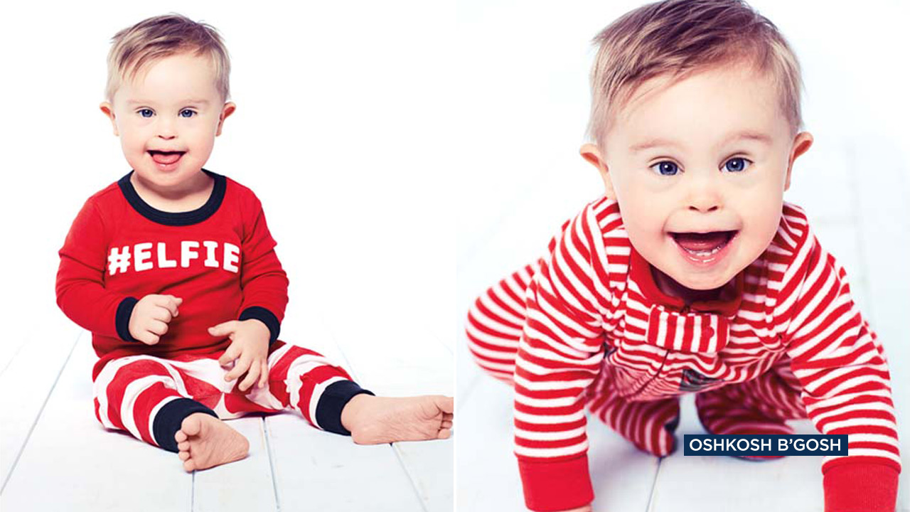 Asher Nash, a toddler with Down syndrome, is starring in the OshKosh B'Gosh holiday campaign.