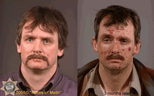 Are facial cysts caused by meth galleries 390