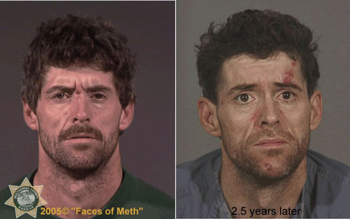 PHOTOS: How methamphetamine destroys your face and physical