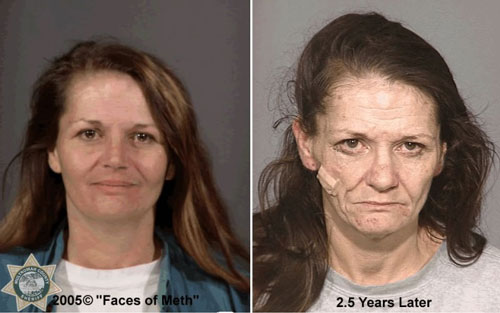 Are facial cysts caused by meth galleries 858
