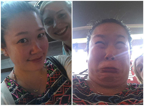 """<div class=""""meta image-caption""""><div class=""""origin-logo origin-image """"><span></span></div><span class=""""caption-text"""">Clearly this young woman didn't know about one of her allergies after swelling up in this right photo. (reddit.com/user/nutella_belly)</span></div>"""