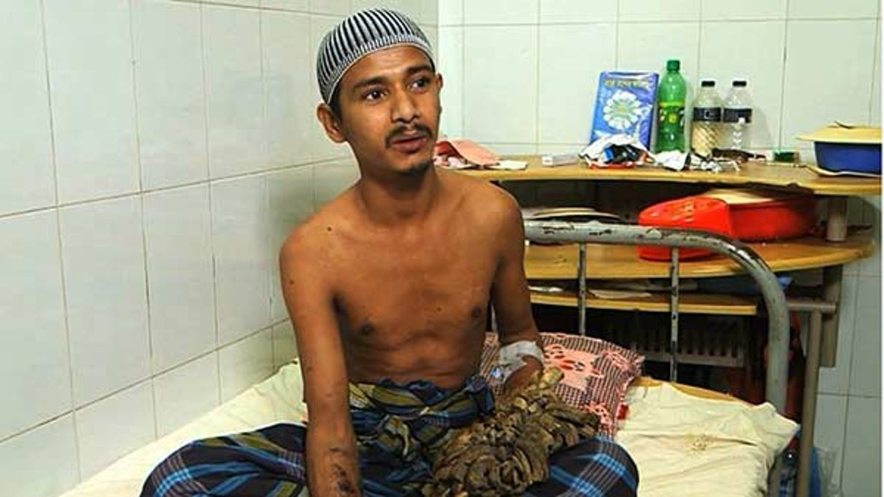 Abul Bajandar, 27, suffered from a rare condition that caused his hands to sprout tree-like warts.