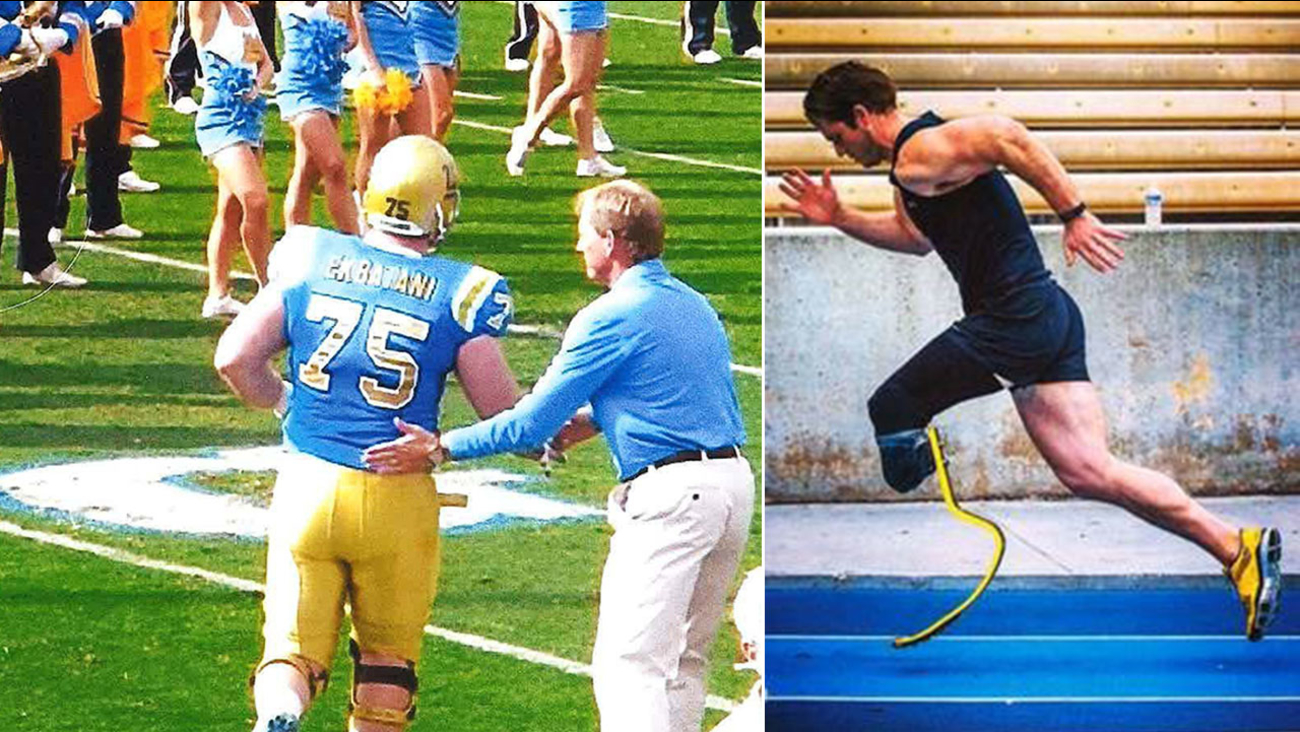 Former UCLA offensive lineman Nick Ekbatani pictured before and after the motorcycle accident that claimed his leg.
