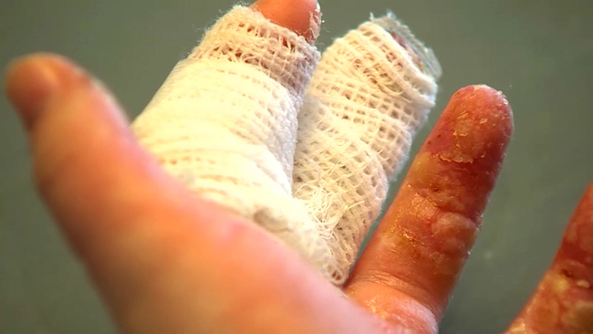Girl ends up with 3rd degree burns from do it yourself homemade girl ends up with 3rd degree burns from do it yourself homemade slime 6abc solutioingenieria Gallery