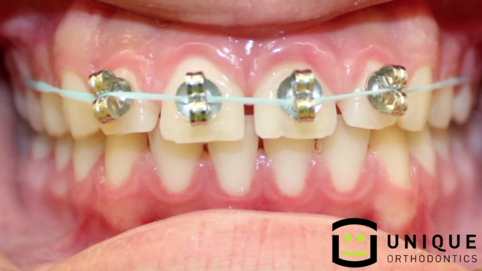 Diy Braces Are A Thing But Not A Good One Abc13 Com