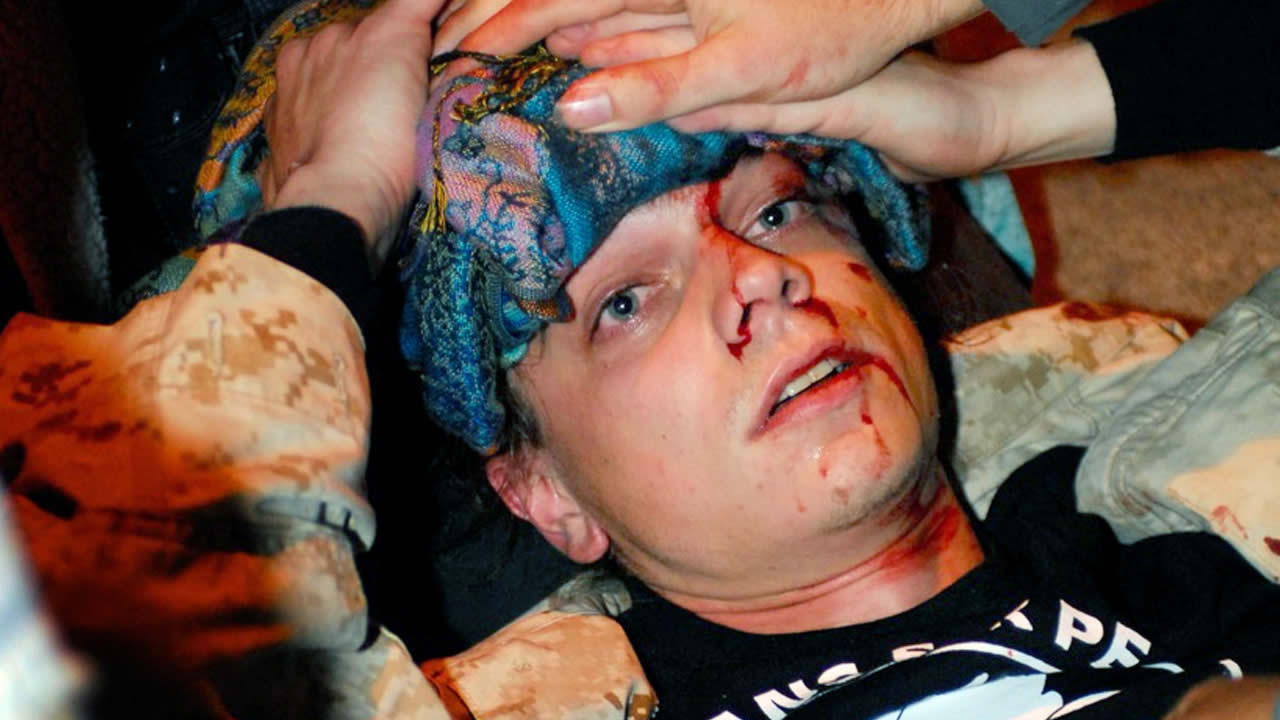 In this Oct. 25, 2011 photo, veteran Scott Olsen lies on the ground bleeding from a head wound after being struck by a projectile during an Occupy protest in Oakland, Calif. (AP Photo/Jay Finneburgh)
