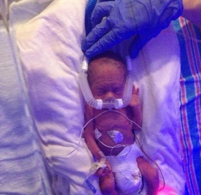 """<div class=""""meta image-caption""""><div class=""""origin-logo origin-image wtvd""""><span>WTVD</span></div><span class=""""caption-text"""">Ford was born at only 28 weeks and weighed just 1 pound, 15 ounces. He was diagnosed with cerebral palsy. (Courtesy of Jessica Throneburg)</span></div>"""