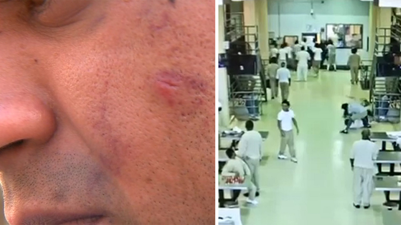 VIDEO: Inmates brutally attack Rikers Island correction