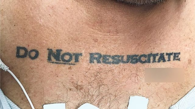 Miami doctors face ethical dilemma with 'Do Not Resuscitate' tattoo