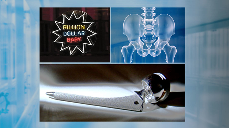 Lawsuits over profit, pain and the hip implant some call toxic