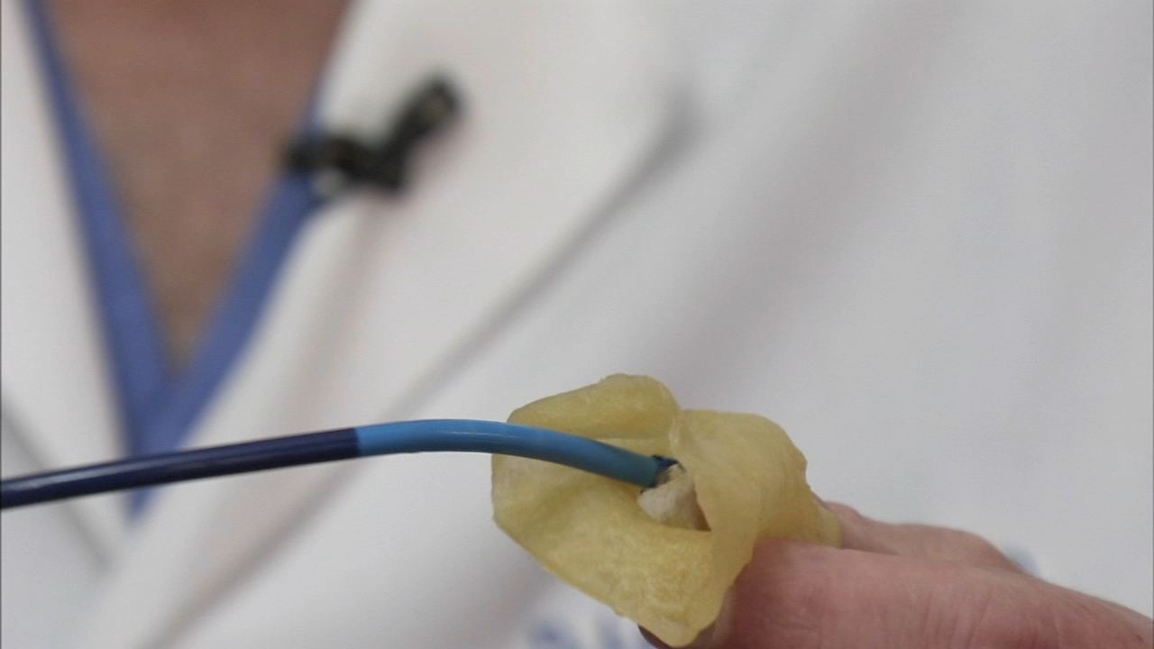Doctors using 3D printers to help heart with AFib