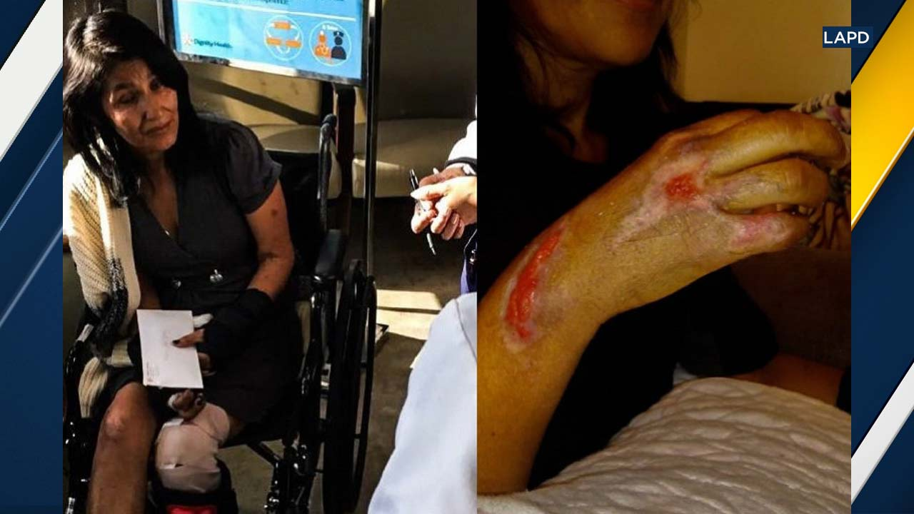 A photo shows Maria Torres' injuries following a hit-and-run crash on Nov. 12, 2017.