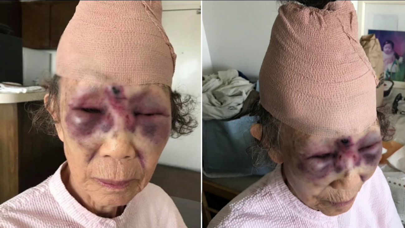 Two images show the injuries on an 85-year-old woman after she was attacked by a man in broad daylight in Koreatown on Saturday, Feb. 10, 2018.
