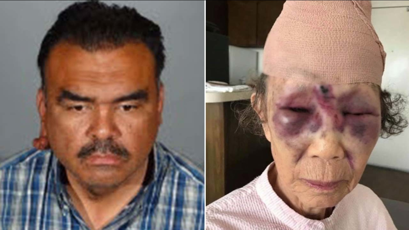 (Left) Richard Rene Colomo of Bell Gardens is the suspect in the beating of an elderly woman (right) in Koreatown.
