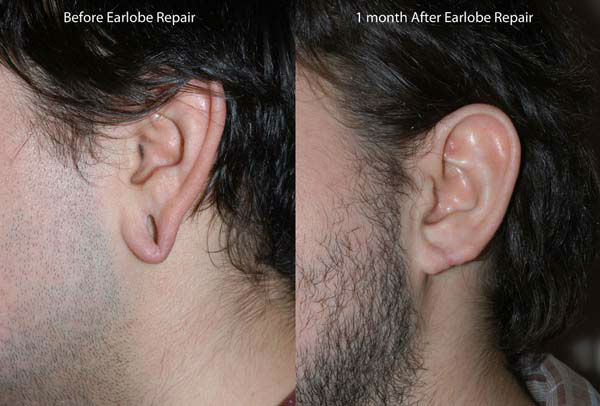 Photos Before And After Earlobe Surgery Abc13com