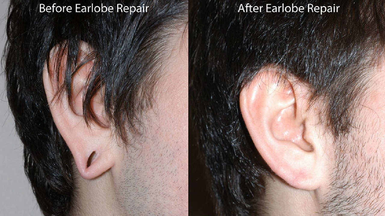 Photos Before And After Earlobe Surgery