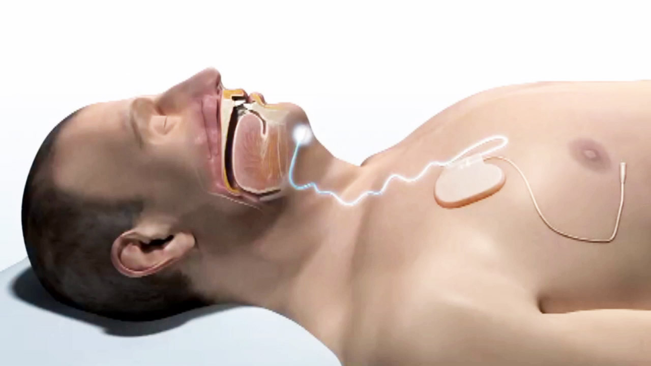 For patients with sleep apnea who can't tolerate the bulky CPAP machine, a new treatment called upper airway stimulation may present a viable alternative.