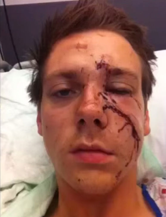Man takes a selfie time-lapse of his face healing after
