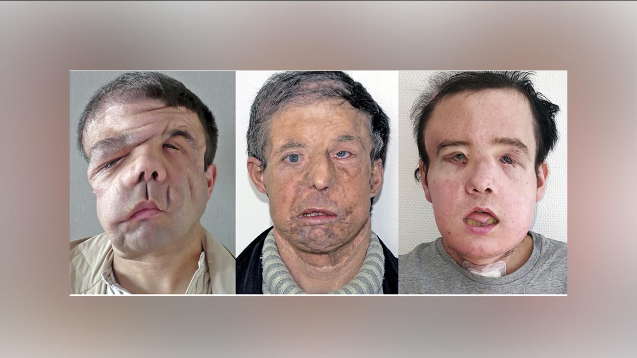facial-transplant-surgery-does-cocaine-make-sex-better