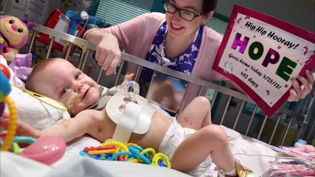 Conjoined twins | abc13 com