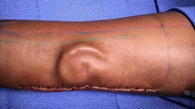 Alabama woman has 50-pound ovarian cyst removed   abc7news com