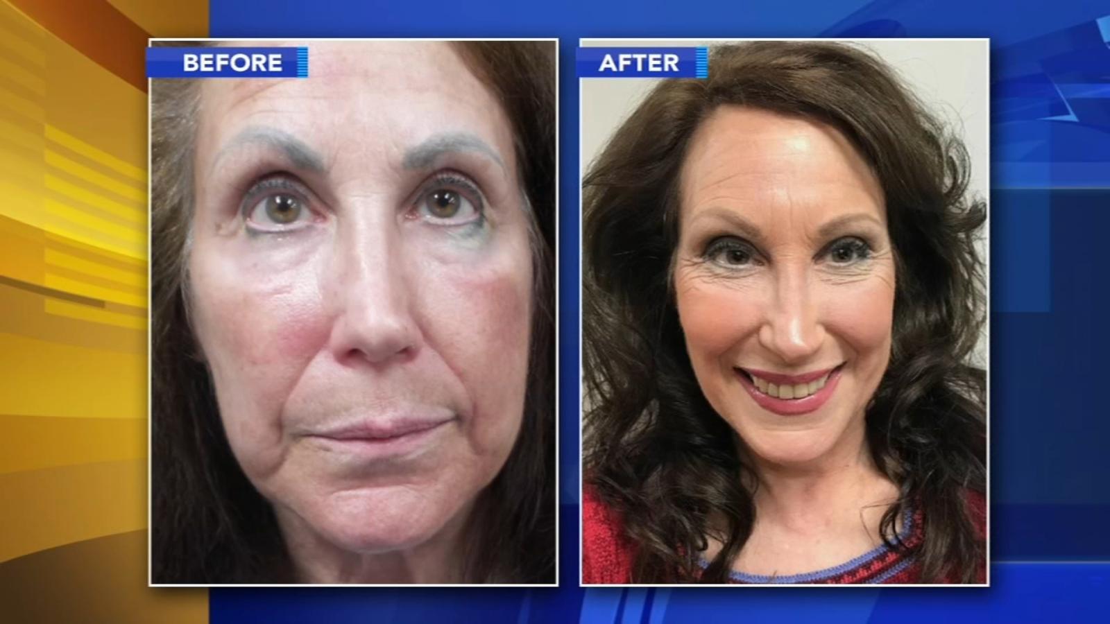 Fixing Permanent Makeup Disasters