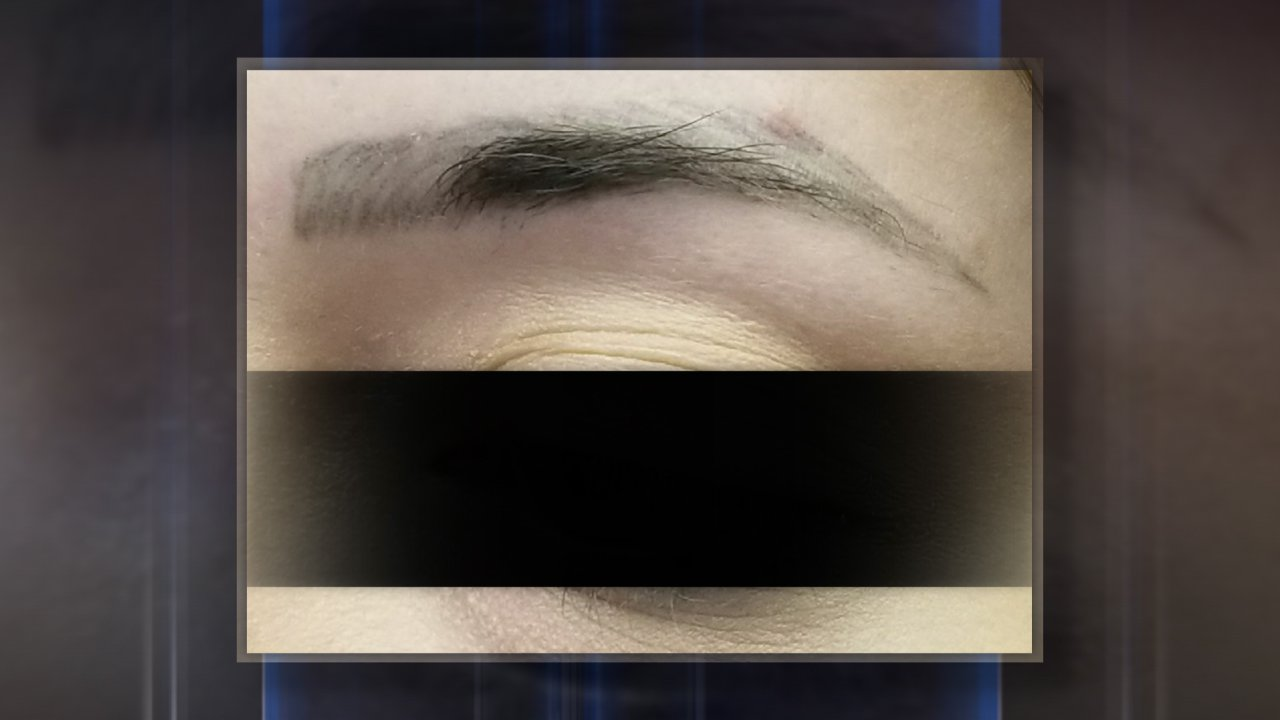 Microblading, permanent cosmetics can cause serious