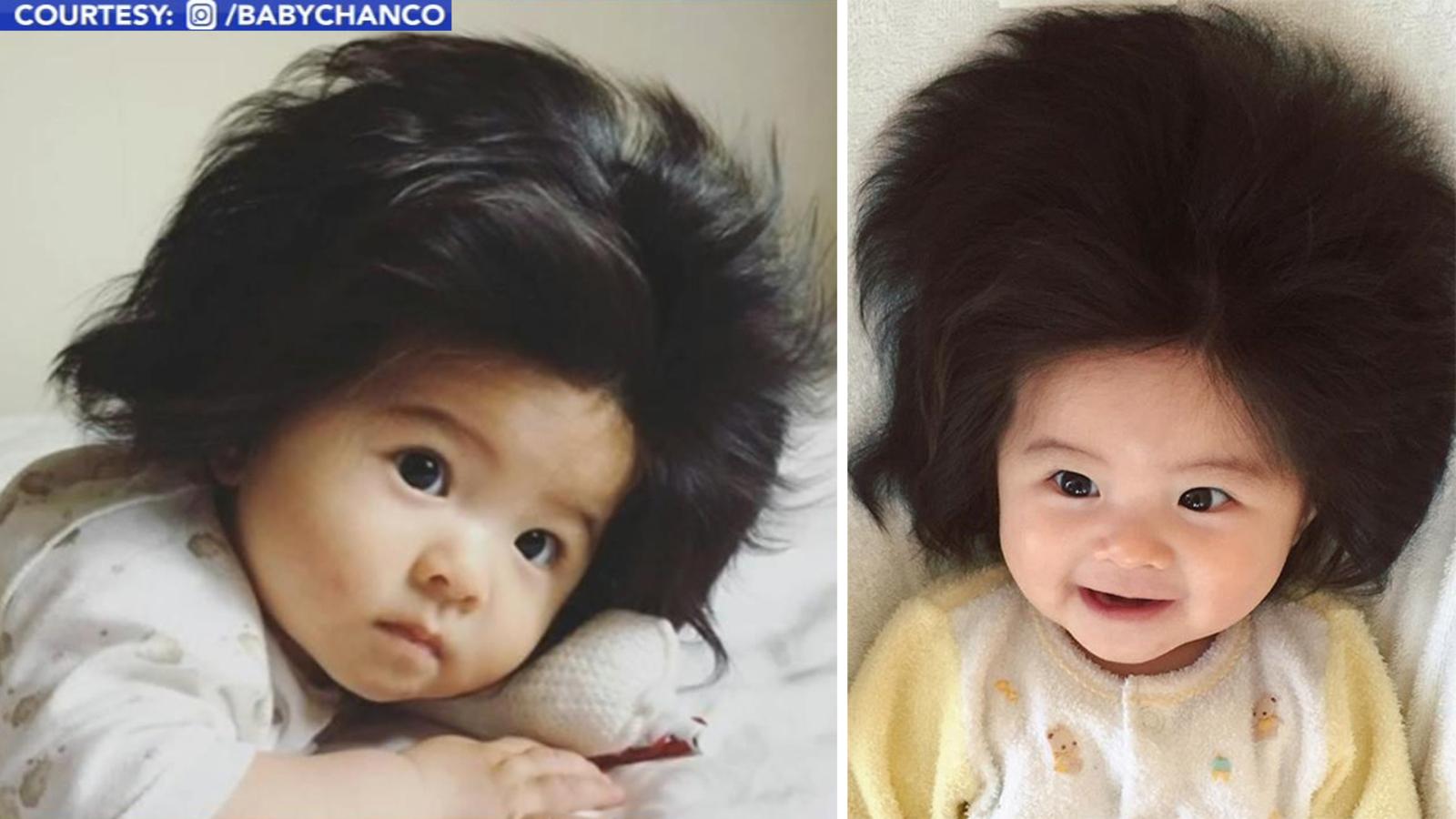 Baby's incredible hair draws Instagram fame - ABC7 San ...