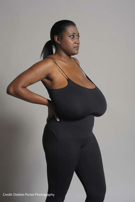 Breast reduction before/after photos